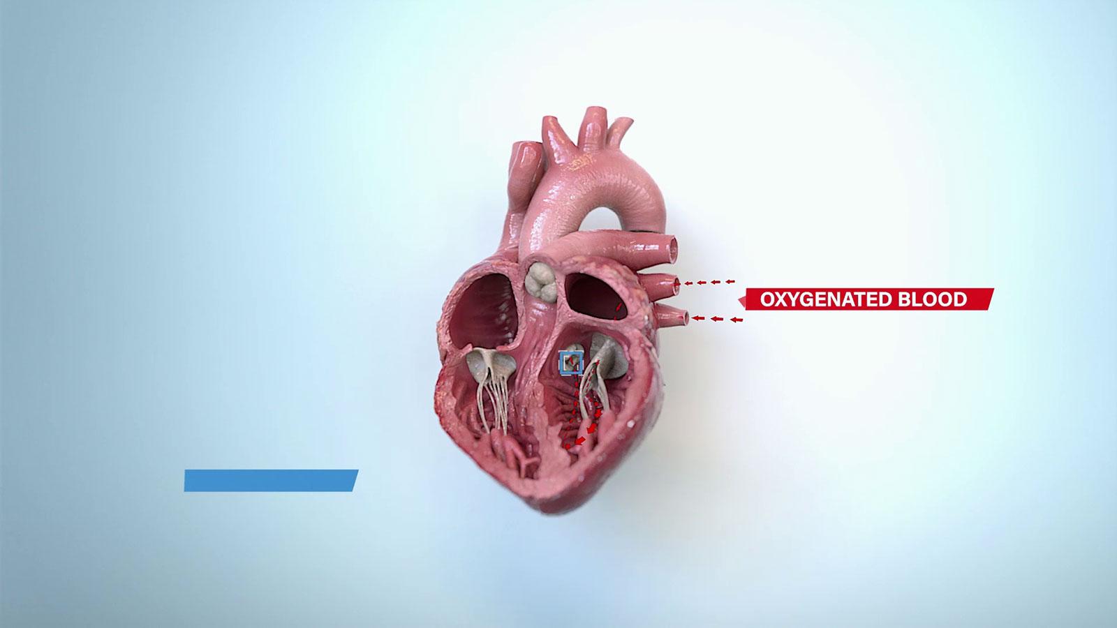 medische animatiefilm laten maken operatie ziekenhuis