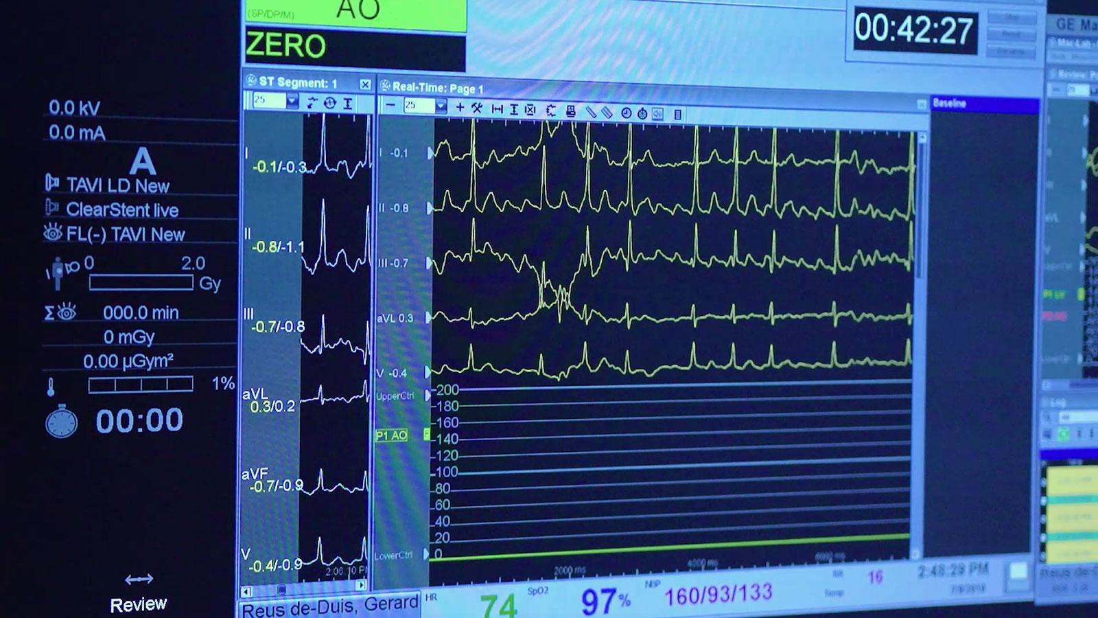 medische film laten maken monitor